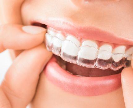 歯ぎしり、くいしばりの対処法